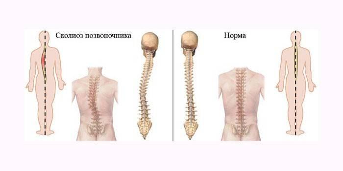 Сколіоз - як виправити вправами, масажем і профілактика