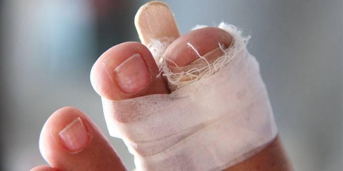 Зламаний великий палець на нозі – що робити, діагностика, методи лікування