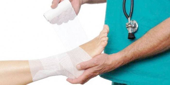 Що робити при вивиху стопи - методи лікування в домашніх умовах
