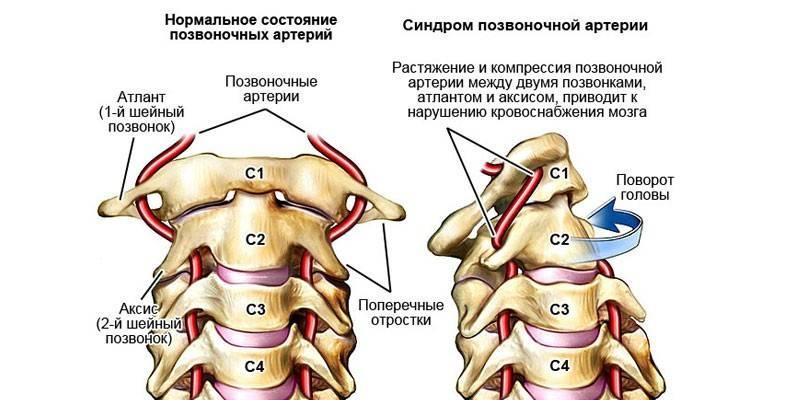 Синдром хребетної артерії при шийному остеохондрозі симптоми патології