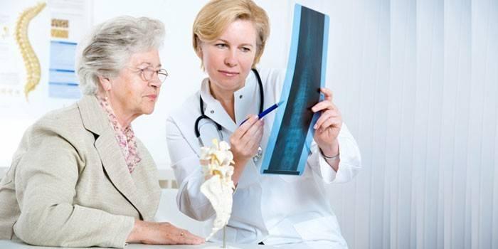 Остеопороз у жінок і чоловіків - перші прояви, методи терапії, вправи і дієта