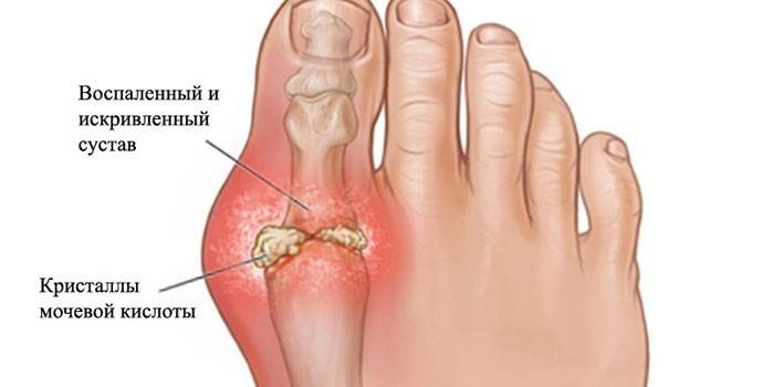 Артроз ніг: причини розвитку та діагностика захворювання, як лікувати хворобу суглобів, профілактика