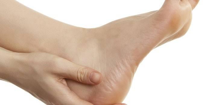 Бурсит стопи - причини та класифікація, способи медикаментозної та народної терапії гомілковостопного суглоба
