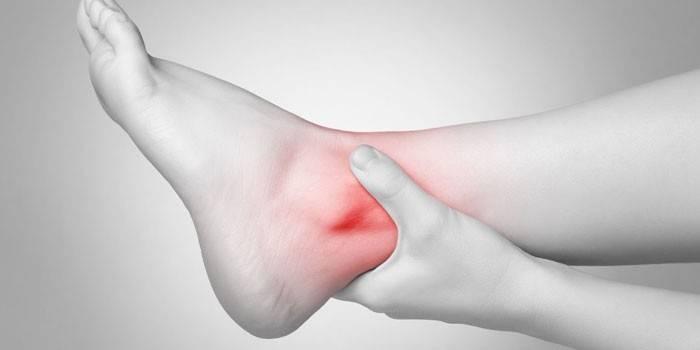 Бурсит гомілковостопного суглоба - як і чим лікувати в домашніх умовах, рецепти народної медицини з відгуками