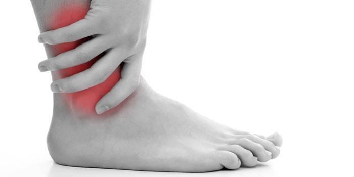 Деформуючий артроз гомілковостопного суглоба - діагностика і профілактика, лікувальна дієта і гімнастика