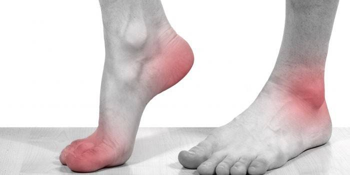 Артроз стопи - види і як лікувати народними засобами, ліками і вправами в домашніх умовах