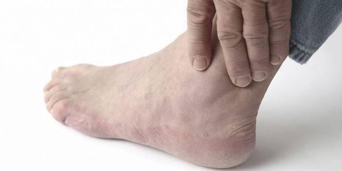 Остеоартроз гомілковостопного суглоба - ознаки, як лікувати медикаментозними і народними засобами