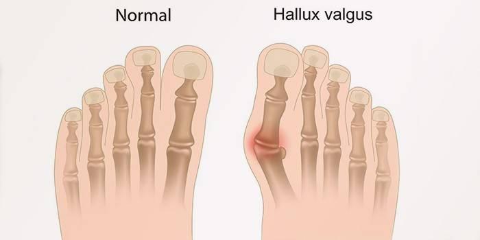 Вальгусна деформація стопи у дитини або дорослого - види, корекція взуттям, хірургічно і реаблитация