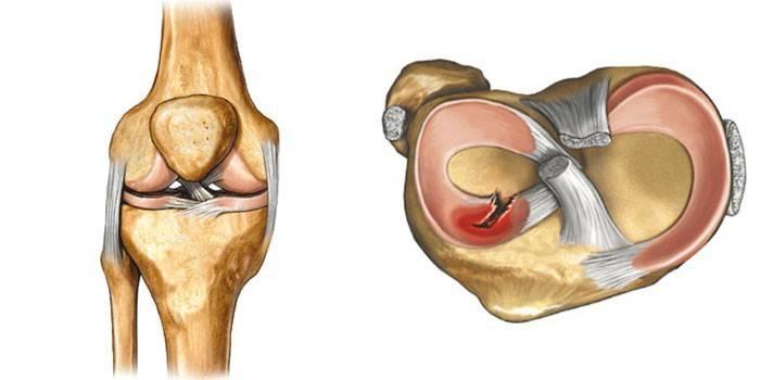 Розрив меніска колінного суглоба - перші ознаки, симптоматика, проведення операції та ЛФК