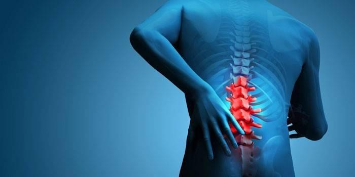 Грижа поперекового відділу хребта - симптоми, медикаментозна терапія і комплекси вправ