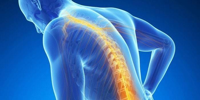 Викривлення хребта: ознаки і симптоми деформації, як випрямити поставу і попередити сколіоз, лордоз і кіфоз