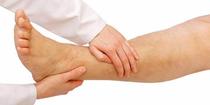Облітеруючий ендартеріїт судин нижніх кінцівок - симптоми і лікування