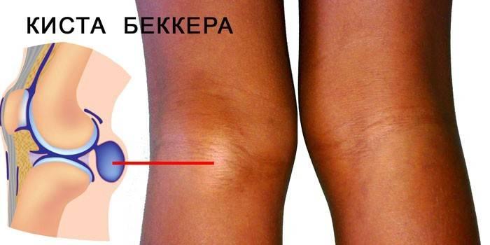 Болить коліно - що робити, лікування колінного суглоба