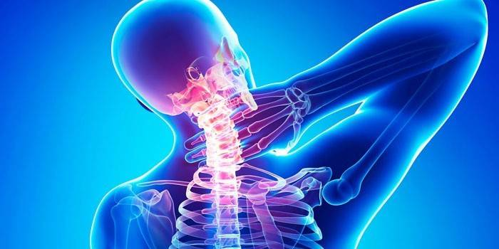 Шийний остеохондроз - симптоми і ознаки