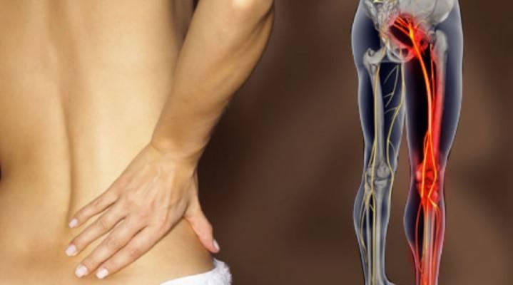 Люмбалгія поперекового відділу хребта - усунення больового синдрому в крижовій області, препарат від спазмів у м'язах спини