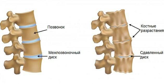 Унковертебральный артроз шийного відділу хребта: симптоми і лікування