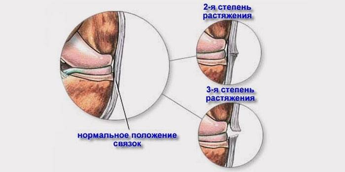 Розтягнення зв'язок кисті руки - симптоми і лікування