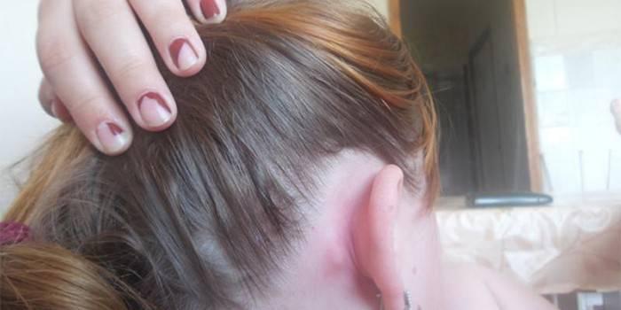 Шишка за вухом: причини виникнення, методи лікування захворювання