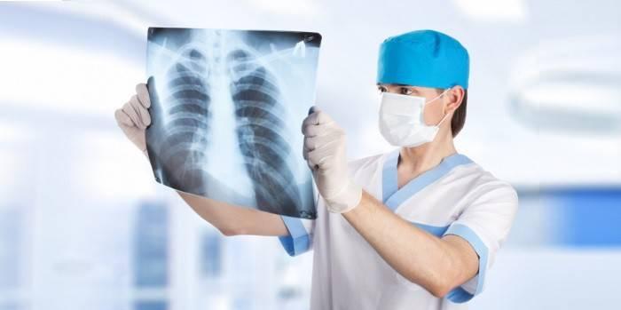 Торакальний хірург - при яких захворюваннях показана консультація і які органи оперує
