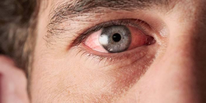 Запалення ока - причини і як зняти в домашніх умовах