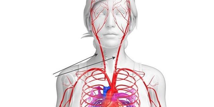 Сонна артерія - анатомічне розташування, які органи постачає кров'ю і хвороби