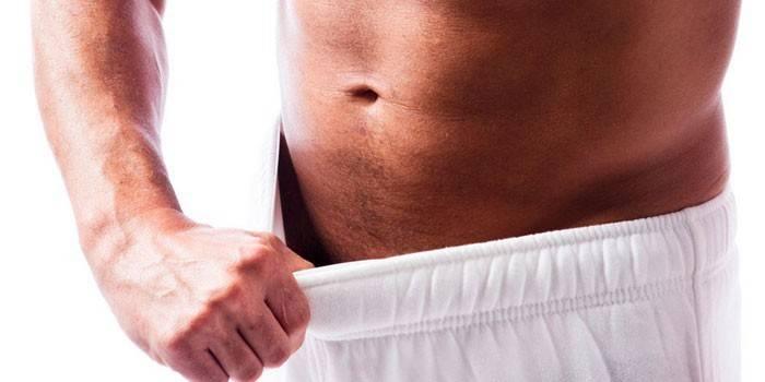 Попрілості в паху у чоловіків - як лікувати мазями та кремами, кошти від запалень