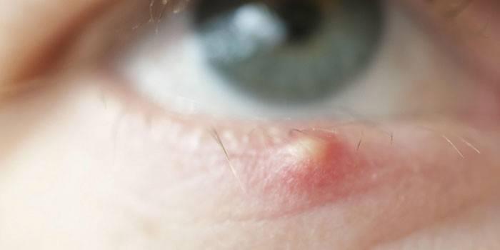 Сверблять очі в куточках - що робити і як лікувати народними засобами або краплями