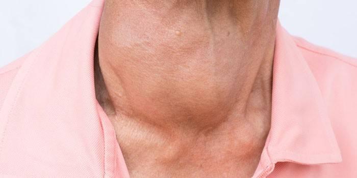 Кіста щитовидної залози: як лікувати освіта