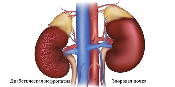 Діабетична нефропатія - перші ознаки, діагностика, методи терапії ліками, дієтою та діалізом