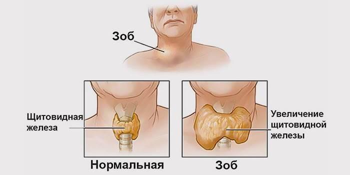 Эутиреоз щитовидної залози: симптоми і лікування, що це таке