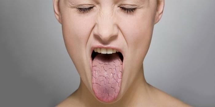 Тріщини мовою посередині і білий наліт: причини і лікування