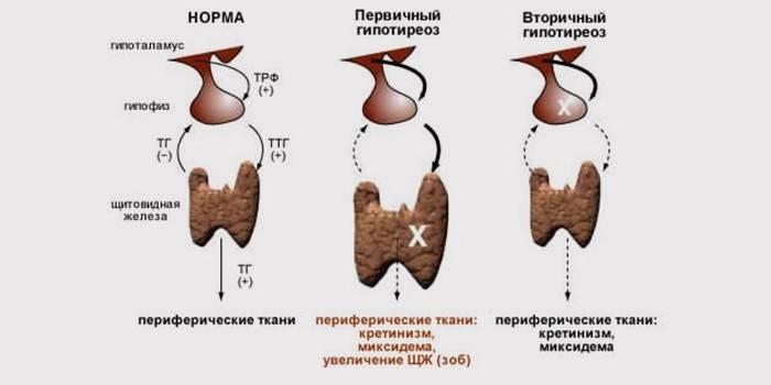 Гіперфункція щитовидної залози: симптоми і лікування у жінок