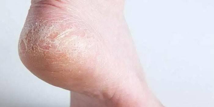 Суха шкіра на руках і ногах - причини і що робити