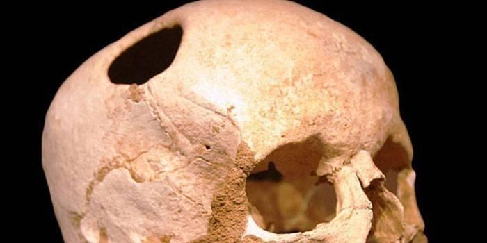 Трепанація черепа - показання до проведення операції, наслідки та відновлення
