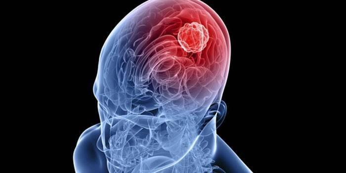 Пухлина мозку - перші прояви і симптоми на ранній стадії, діагностика у дітей і дорослих