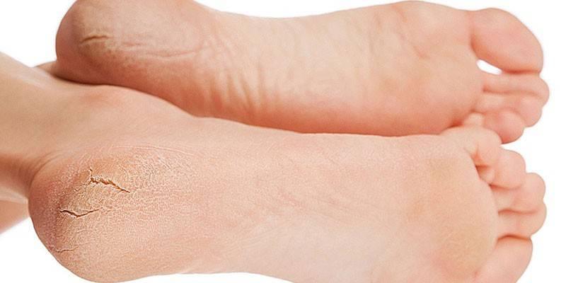 Крем з сечовиною для ніг - найбільш ефективні аптечні засоби для лікування тріщин і натоптишів