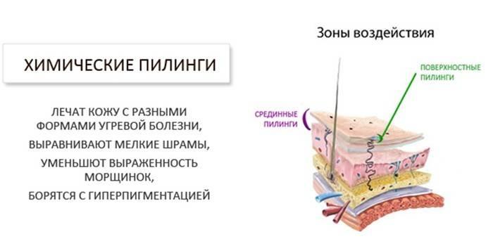 Кислотний пілінг для обличчя в домашніх умовах - який вибрати