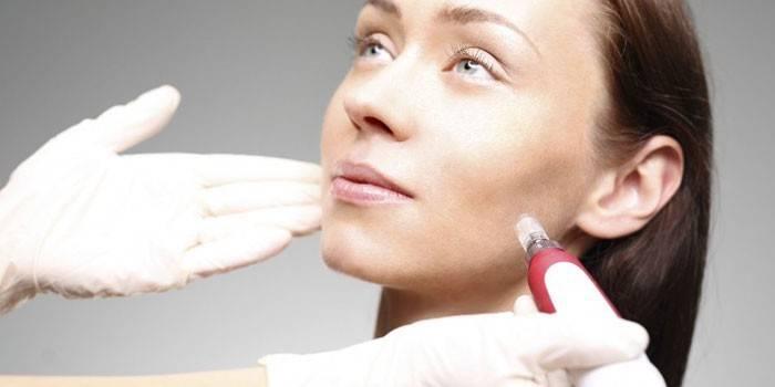 Фракційна мезотерапія: показання до застосування та ефективність процедури, ціна в салоні, відгуки про омолодження