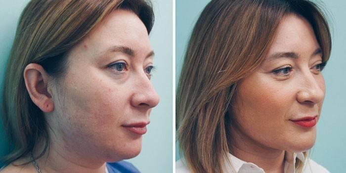 Ліполітікі для особи - прямі і непрямі препарати, результати схуднення з фото