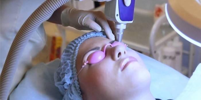 Як освітлити татуаж брів в домашніх умовах за допомогою підручних засобів