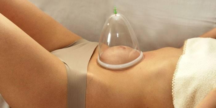 Банковий масаж живота для схуднення та від целюліту - як робити в домашніх умовах відео