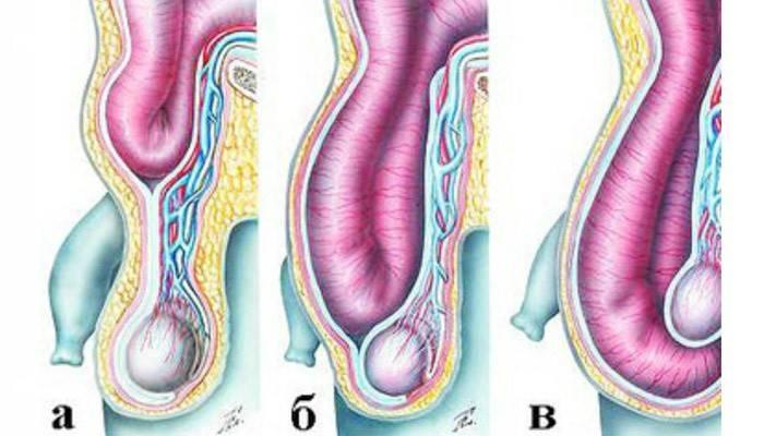 Лікування без операції пахової грижі у чоловіків: народні засоби і вправи