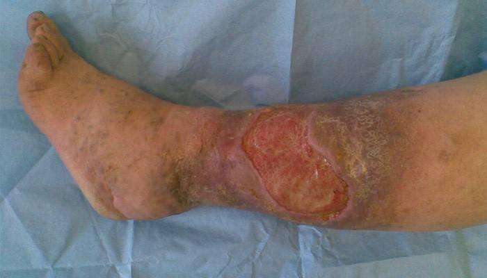 Лікування трофічних виразок на ногах народними засобами: найкращі рецепти