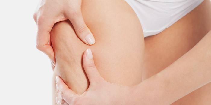 Дієта від целюліту на ногах і попі: ефективне меню на тиждень